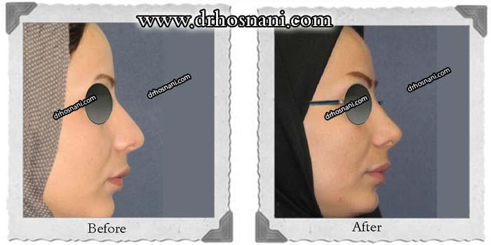 nose-surgery-280