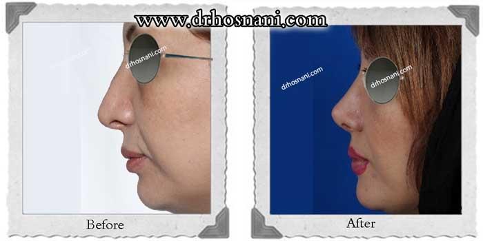 revision rhinoplasty-282