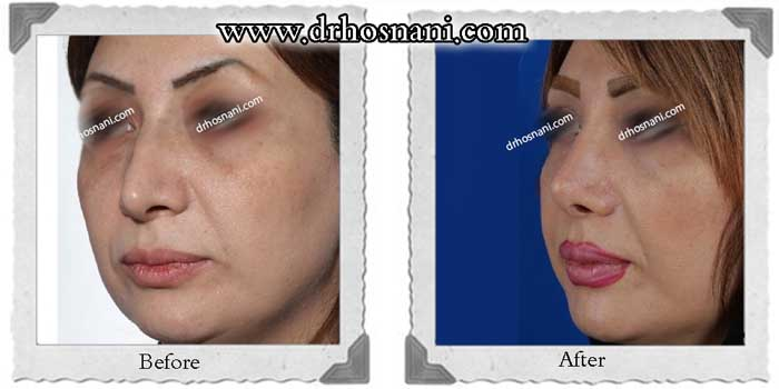 nose-surgery-283