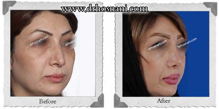 nose-surgery-284