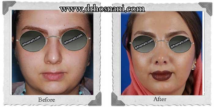 nose-surgery-285