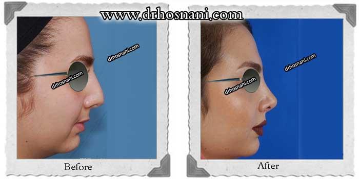 nose-surgery-286
