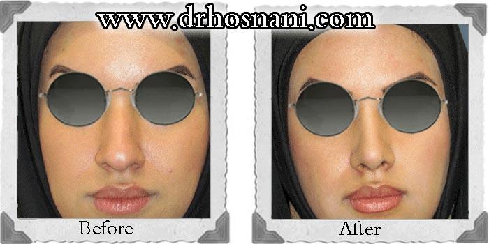 nose-surgery-29