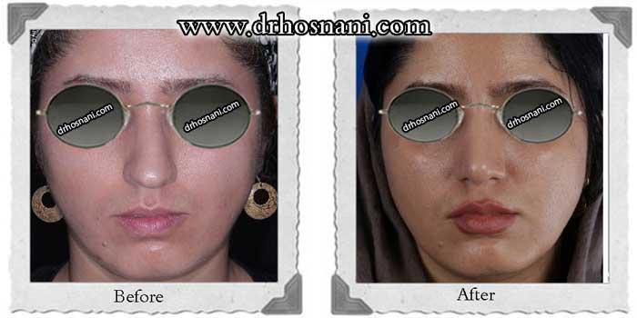 nose-surgery-291