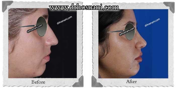 nose-surgery-292