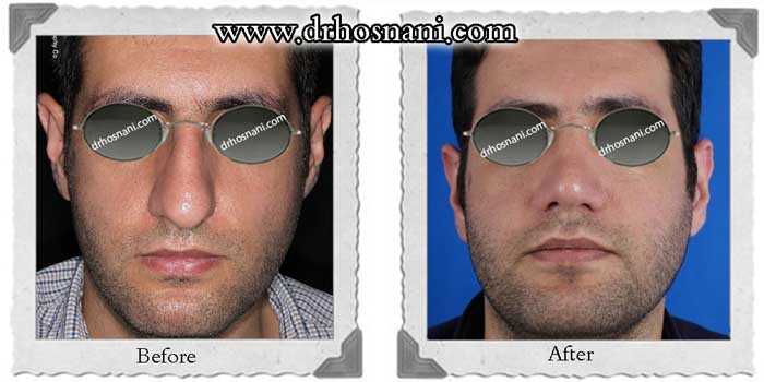 nose-surgery-305