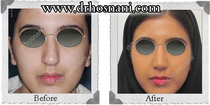 نمونه جراحی انحراف بینی و کجی بینی 4