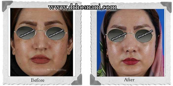 nose-surgery-322