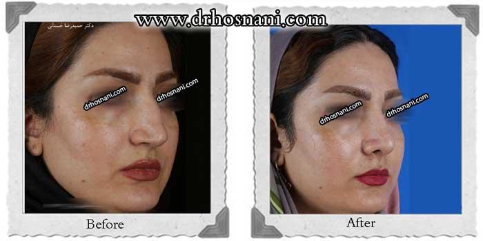 nose-surgery-323