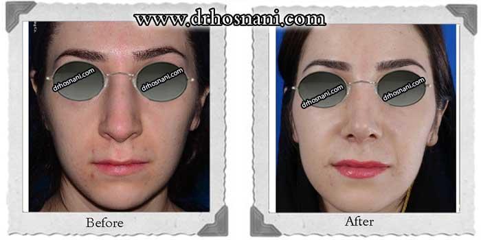 nose-surgery-326