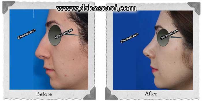 nose-surgery-327