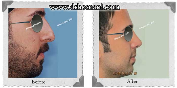 nose-surgery-328