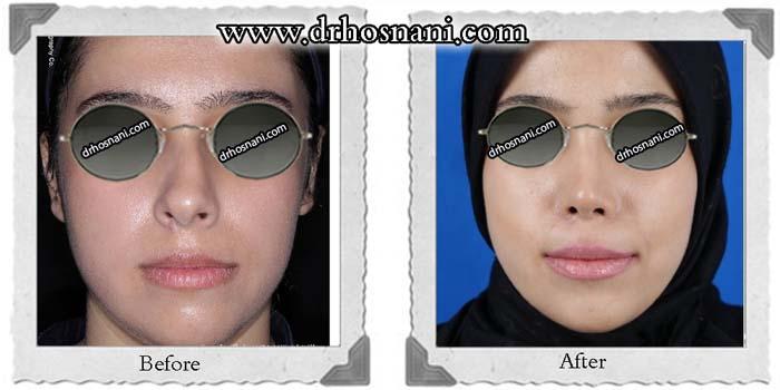 nose-surgery-349