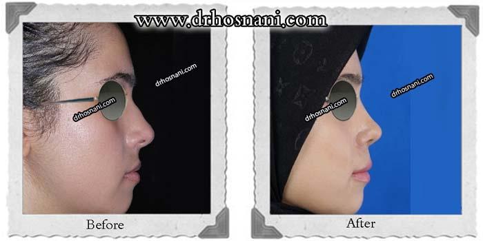nose-surgery-350