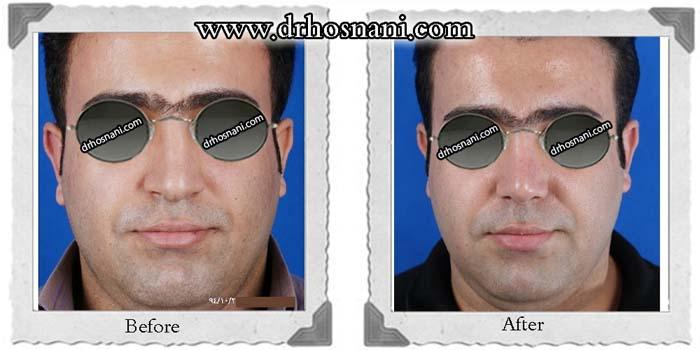 nose-surgery-353