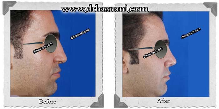 nose-surgery-354