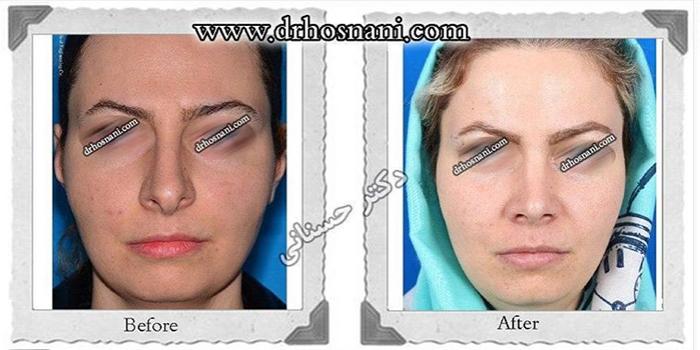 nose-surgery-420