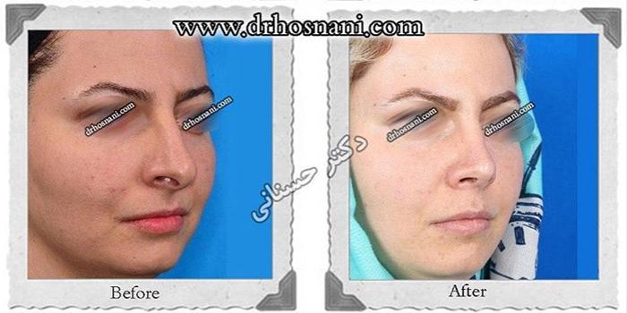 nose-surgery-421