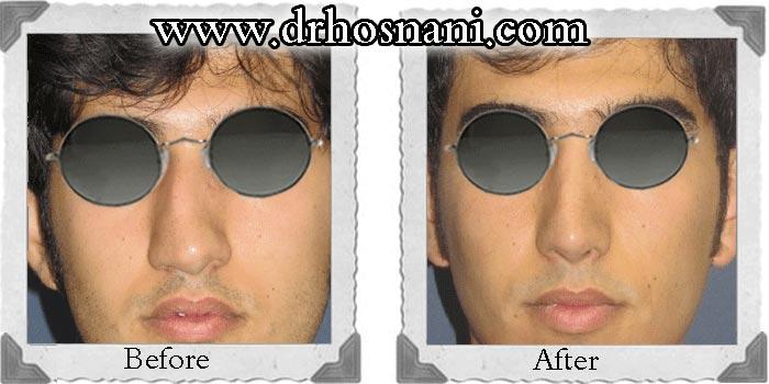 nose-surgery-44