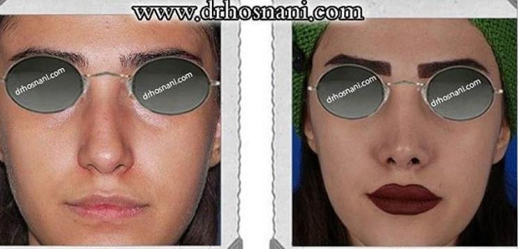 nose-surgery-493