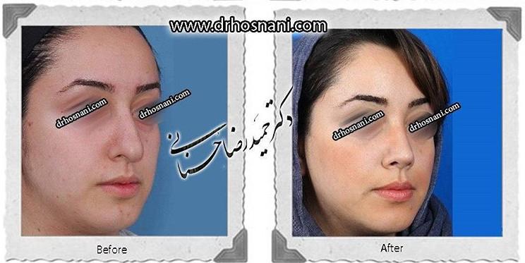 nose-surgery-506