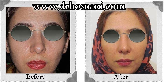 nose-surgery-59
