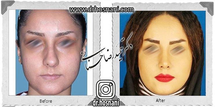 nose-surgery-592