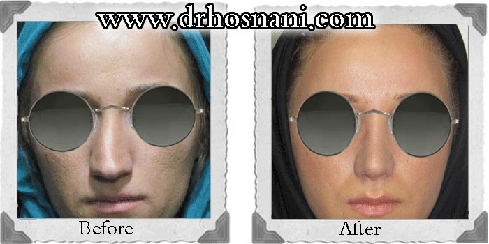 nose-surgery-64