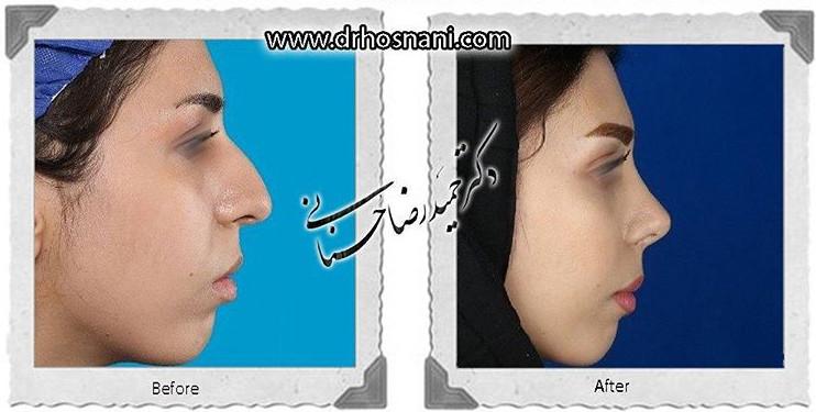 nose-surgery-650
