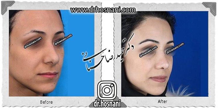 nose-surgery-651