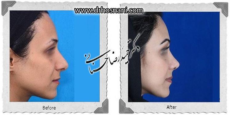 nose-surgery-652
