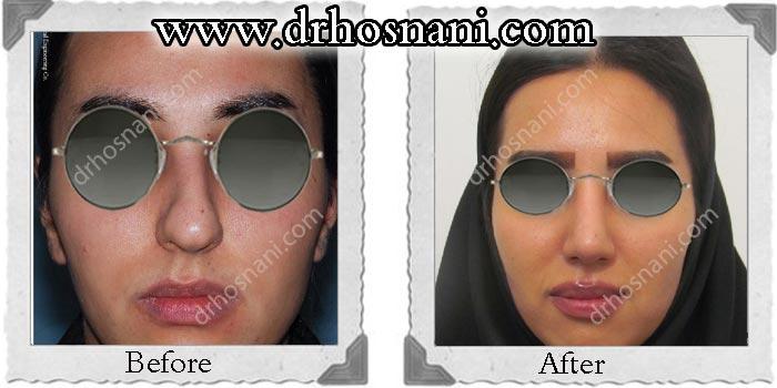 nose-surgery-66