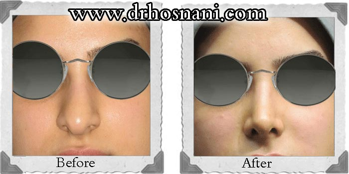 nose-surgery-71