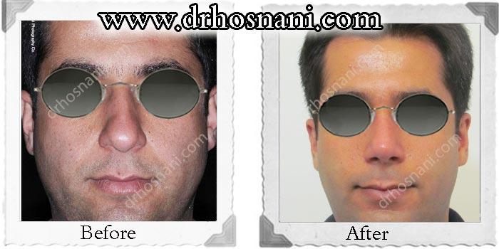 nose-surgery-73