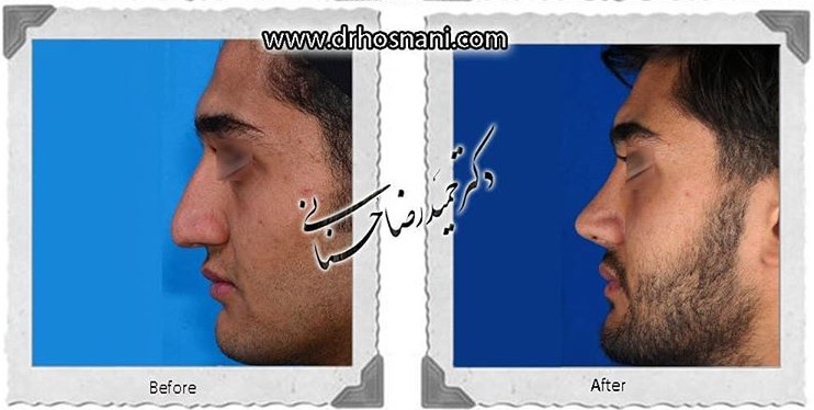 nose-surgery-757