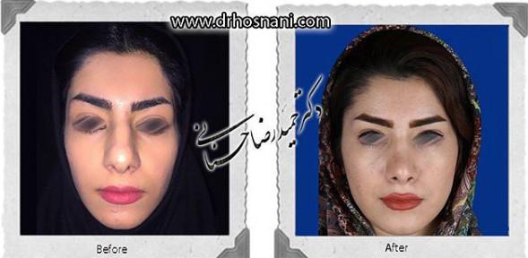 nose-surgery-835