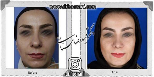 nose-surgery-846