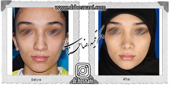 nose-surgery-869