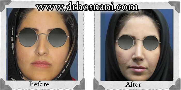 nose-surgery-87
