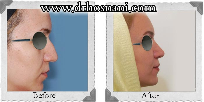 nose-surgery-89