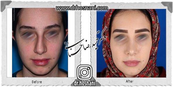 nose-surgery-923