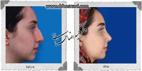 nose-surgery-924