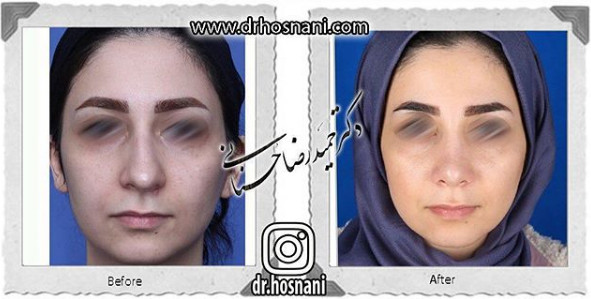 nose-surgery-929