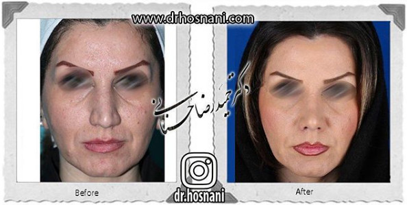 nose-surgery-937
