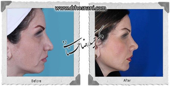 nose-surgery-938