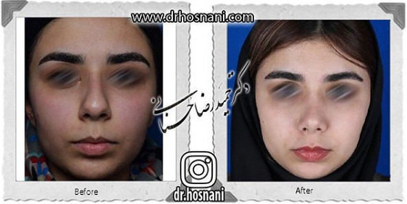 nose-surgery-945
