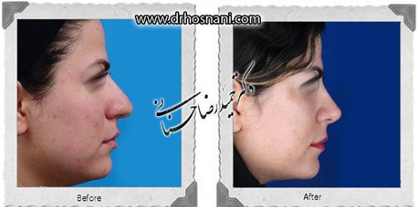 nose-surgery-960