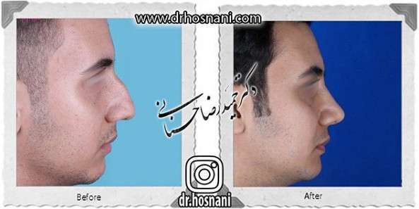 nose-surgery-961