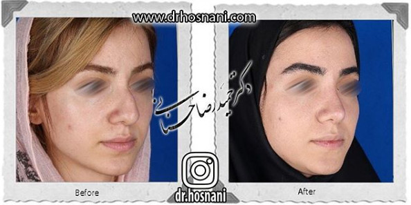 nose-surgery-987