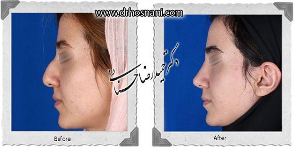 nose-surgery-988